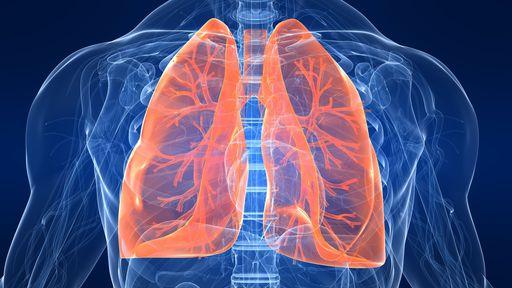 Anvisa aprova novo medicamento oral para câncer de pulmão avançado